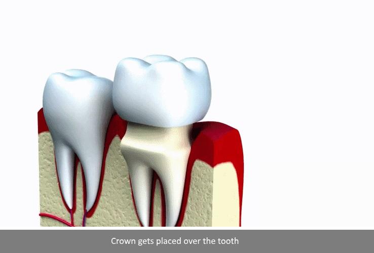 57ab44d8cee Dental Crown Caps at Tustin Smile